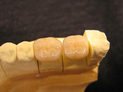 セラミッククラウン(臼歯)