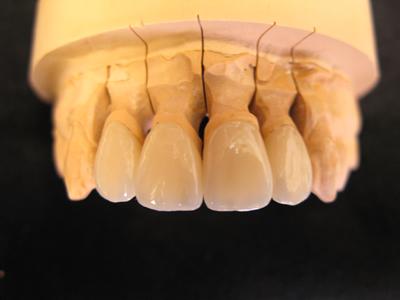 セラミッククラウン(前歯)